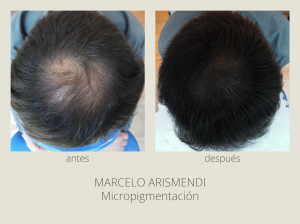micropigmentacion_antesdespues-01