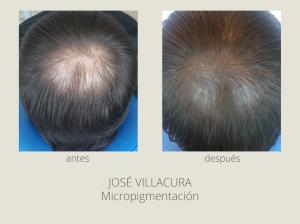 micropigmentacion_antesdespues-02